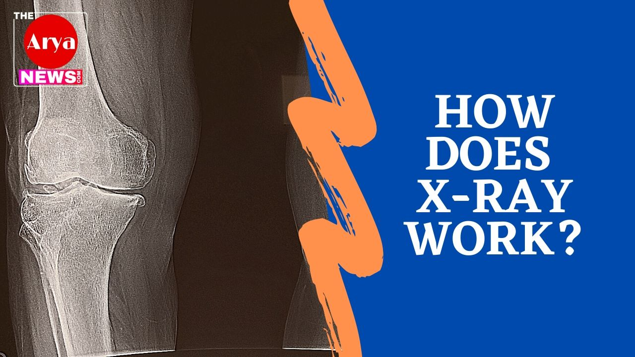 How does X-Ray work?